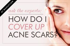 BEST BEAUTY TIP: HOW TO COVER UP ACNE SCARS