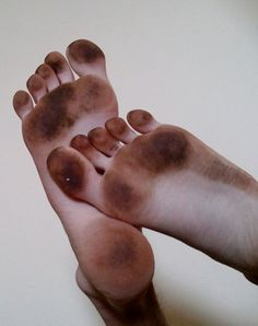 I suppose your feet look like that after running through a forest with no shoes on