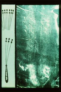 Photograph of the back of the calves of the Man in the Holy Shroud of Turin