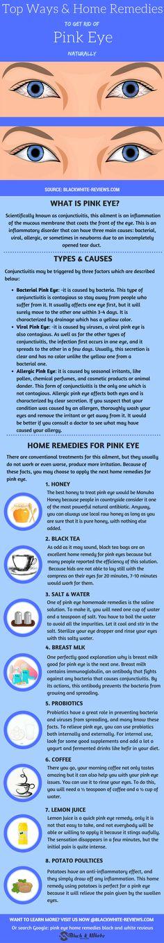 Pink eye remedy. How to get rid of pink eye by using honey, black tea, saline water, breast milk, probiotics, coffee, lemon juice or potato poultices.