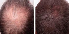 Afla ce îți cauzează căderea părului și ce poti face pentru a îndepărta aceasta problema Vino la IHAIR pentru o analiză capilara GRATUITA (la cumpararea produselor RUEBER valoare 150lei) tel 0728832209  🚑👨⚕️