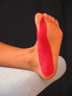 Hallux Valgus gewricht corrigeren met tape. Keeping Healthy, Get Healthy, Message Therapy, Sports Therapy, Kinesiology Taping, Bunion, Health Lessons, Feet Care, Physical Therapy