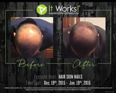 hsn it works results 90 day challenge * hsn it works results . hsn it works results 90 day challenge . hsn it works results men . hsn it works results grow hair It Works Wraps, Itworks Hsn, It Works Marketing, It Works Distributor, Independent Distributor, It Works Global, It Works Products, Hair Products, 90 Day Challenge