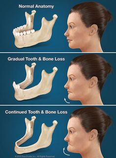 Without teeth, your jaw bone is no longer stimulated. If you are missing one or more teeth, you can preserve your jaw bone with dental implants. Dental Hygiene School, Dental World, Dental Life, Dental Surgery, Dental Implants, Oral Health, Dental Health