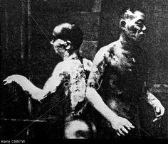 wo burn after the atomic explosion in Hiroshima E Nagasaki, Hiroshima Bombing, History Photos, Us History, Horrible Histories, Nuclear Bomb, Black History Facts, World War Two, Wwii