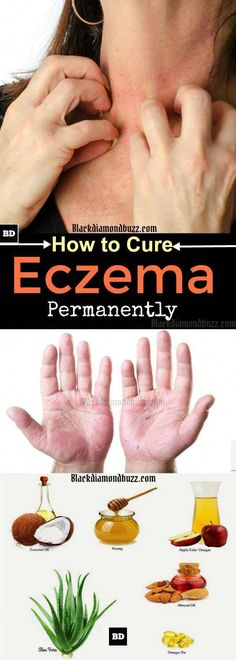 Eczema Remedies How to Cure Eczema Permanently - 10 Home Remedies for Eczema- Do you want to get rid of eczema permanently? Then, here are home remedies for eczema.There home treatment will help you cure eczema on the face, hand or legs naturally. Home Remedies For Eczema, Natural Headache Remedies, Skin Care Remedies, Natural Home Remedies, Health Remedies, Snoring Remedies, Flu Remedies, Holistic Remedies, Skin Care