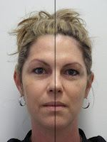 Intraceutical Half face.  So in this picture her lookers left side has had the treatment and the other has not.  I saw results just like this when I worked with this treatment.
