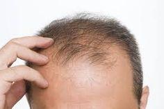 Hair Transplant Surgery, Best Hair Transplant, Protein Shakes, Reverse Hair Loss, Regrow Hair, Prevent Hair Loss, Hair Restoration, Hair Loss Treatment, Grow Hair