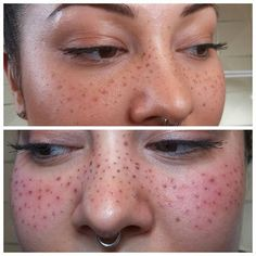 I had the pleasure of tattooing some freckles the other day!  They look absolutely crazy all fresh like this, but they will be much softer after healing. At our next session we plan to add more for a cute and natural result!  First photo is with makeup to map out and visualize. Second photo is immediately after tattooing.  Freckles and beauty marks are by consultation only, please email tweddle.tattoo@gmail.com for inquiries!  Please keep your comments respectful, don't forget that this…