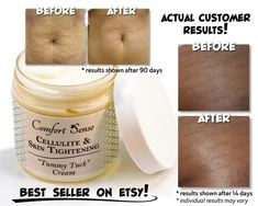 Cellulite Skin Tightening Tummy Tuck Oil for | Etsy Belly Skin Tightening, Skin Tightening Cream, Best Foods For Skin, Creepy Skin, Cellulite Oil, Oil For Stretch Marks, Hair And Beauty Salon, Beauty Skin, Tummy Tucks