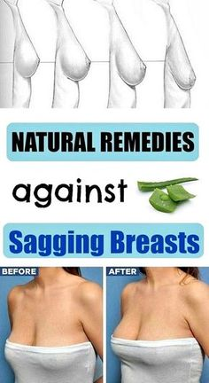 Natural remedies for sagging breasts - Top Beauty 'n' Health