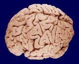 optimistic v. pessimistic brains