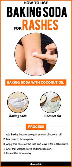 How to Use Baking Soda for Rashes