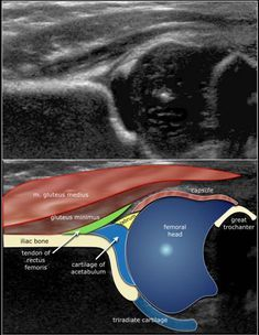 The Radiology Assistant : Developmental Dysplasia of the Hip - Ultrasound Ultrasound School, Baby Ultrasound, Radiology Student, Radiology Imaging, Ultrasound Sonography, Ultrasound Technician, Medical Brochure, Maternity Styles, Pregnancy Photos