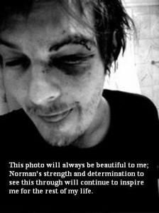 norman reedus after his car accident