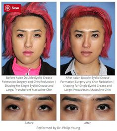 Before & After Asian Double Eyelid Crease Formation Surgery and Chin Reduction | Shaping for Single Eyelid Crease and Large, Protuberant Masculine Chin