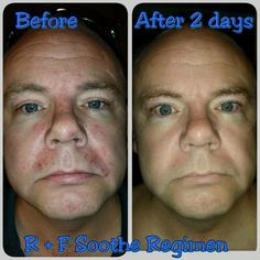 """MEN ~ YOU ARE TOUGH CUSTOMERS!!  Just like my fellow consultant Heather Downes' husband Michael, who didn't want to use """"girly"""" skincare products... I bet Michael (secretly)is happy now that he finally listened!  Read what Heather had to say about his results using Soothe to treat his eczema: """"This is my husband, Michael. He had an eczema flare up and after listening to me go on and on about Soothe, he finally broke down and started using it! These are his B / A p"""