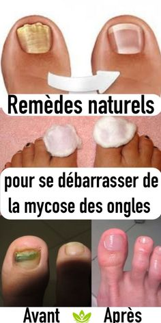 Beauty Discover Effective Natural Remedies To Get Rid Of Nail Fungus Infection Fongique Toe Fungus Social Well Being Teeth Care Fungus Treatment Fungi Health Remedies Nail Care Natural Remedies Nail Health Signs, Infection Fongique, Foods For Brain Health, Toe Fungus, Social Well Being, Teeth Care, Health Remedies, Fungi, Beauty Tutorials
