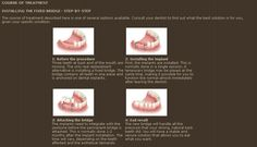 Installing Fixed Bridge Procedure Step-By-Step Tooth Replacement, Dental Implants, Teeth, How To Find Out, Bridge, Bridges, Tooth, Legs, Bro