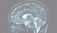 New research suggests connection between white matter and cognitive health - http://scienceblog.com/71548/new-research-suggests-connection-between-white-matter-and-cognitive-health/