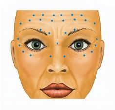 Face Fillers, Botox Fillers, Dermal Fillers, Botox Brow Lift, Eyebrow Lift, Botox Injection Sites, Botox Injections, Is Botox Safe, Botox Face
