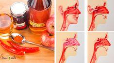 apple-cider-sinus-infection