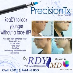 The Precision TX approach uses a special laser with a tip designed to provide more focused targeting of your skin's loose and sagging tissue.