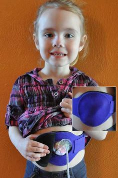 """The G-tube protector is a good solution to keep little hands away from buttons while still allowing easy access for parents.  It also has an option for a hard """"turtle shell"""" cover that can offer additional protection during sports or for tummy time."""