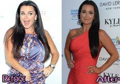 Kyle Richards Plastic Surgery Before and After Great Result