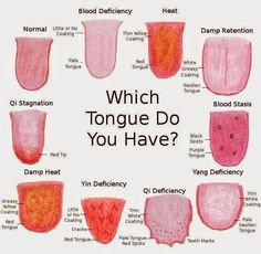 What Is Acupuncture This is what acupuncturists can tell about you by looking at your tongue. Health Facts, Health And Nutrition, Health And Wellness, Health Tips, Health Fitness, Health Chart, Oral Health, Alternative Heilmethoden, Alternative Health