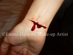 cut on wrist