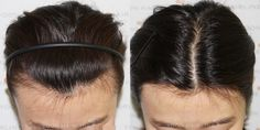Hair Transplantation Only For Women