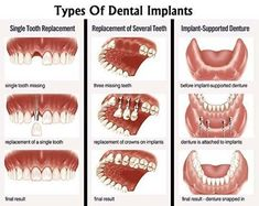 Types Of Dental Implants #dental #implants #teeth