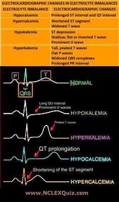 ECG changes in Electrolyte Imbalances