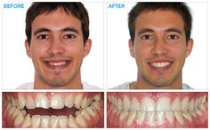 Before and after adult braces right! Idea
