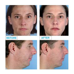 Men can also benefit largely from microdermabrasion as well as women! Benefit, Wellness, Tools, Baseball Cards, Women, Instruments, Woman