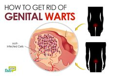 It goes without saying that unprotected sex can have grave consequences. It leaves you susceptible to different sexually transmitted infections (STIs) and diseases (STDs), dealing with which can be really embarrassing at times. One such STI is genital warts. Genital warts, also known as venereal warts or fig warts, are soft, flesh-colored growths that occur...