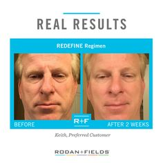 """""""I feel that I am on the road to looking younger than my age because of R+F."""" –R+F Preferred Customer Keith.  https://www.smore.com/cx66q-rodan-fields"""