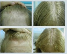 Dealing With Female Hair Loss – How to Stop Hair Loss