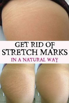 Get Rid of Stretch Marks in a Natural Way