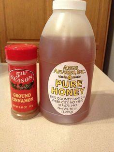 Disease healing power of honey and cinnamon