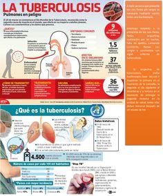 La tuberculosis pulmonar (confirmada por baciloscopía) es la fuente de infección más frecuente y constituye el objetivo fundamental de las actividades de detección, diagnóstico y tratamiento para el control de la enfermedad.