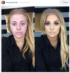 Ashley VanPevenage girl in viral makeup meme pimples reacts speaks out cruel twitter joke photo before after instagram Andreigha Wazny