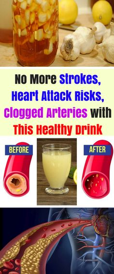 The garlic and lemon are the 2 best natural items used for both cooking and health. They are good separately too, but in this mix, a combination is even better. You probably did not know that the best and effective cure for unclogging arteries is lemon juice and garlic. This recipe below is...