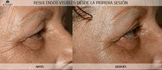 Resultados visibles en la primera sesión de  Mesoterapia virtual en tratamiento rejuvenecedor facial