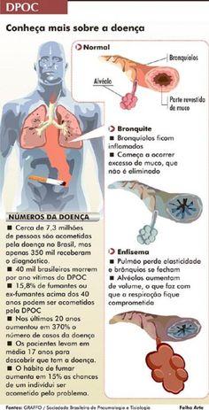 reabilitação pulmonar - Pesquisa Google