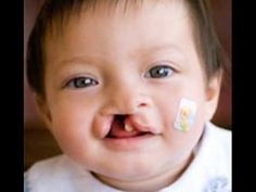 Operation Smile infomercial. It's such an incredible organization that helps millions of children across the globe!