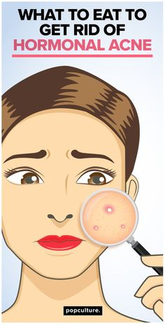 You can tell if the acne breakouts are hormone-induced if the pimples appear on the lower face, along the jawline and even on your neck. Another indicator is if the acne appears before or after your period. Lucky for you, hormonal acne can be treated! Find out what foods to eat to eliminate hormonal acne for good! Popculture.com #acne #hormonalacne #acneflareup #acneremedies #acnetreatment