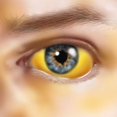 Yellow eyes or skin (jaundice) http://www.prevention.com/health/6-signs-your-liver-might-be-failing/slide/2