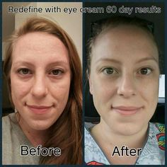 REDEFINE Multi-Function Eye Cream combines powerful peptides to minimize the appearance of crow's-feet, helps reduce the appearance of both puffiness and dark under eye circles while special optical diffusers noticeably brighten the eye area. Click through for more info!
